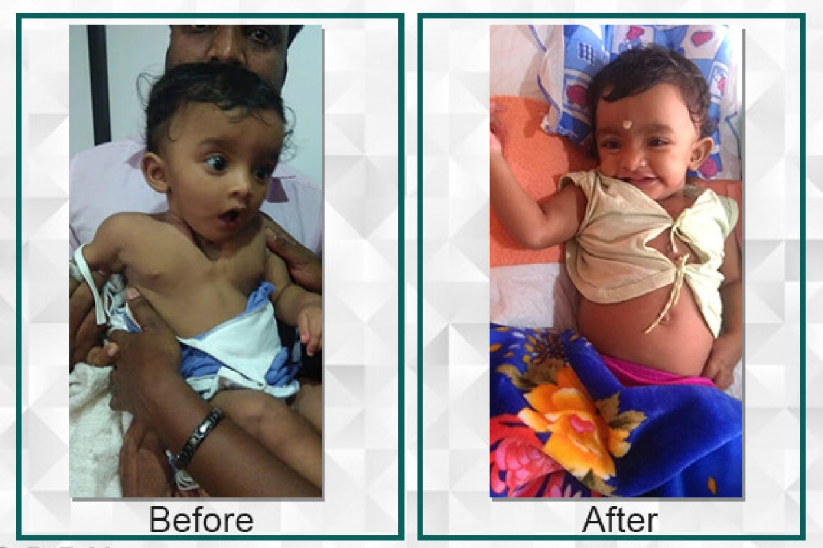 Athmika suffered from Congenital Agenesis but with the help of the raised funds she is now living a normal life