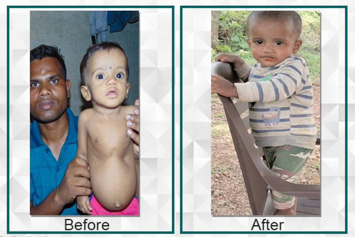 Kartik, a one-year-old boy, required surgery to fix his heart defect which cost Rs 2,25,000/- which was soon received and the surgery was successfully