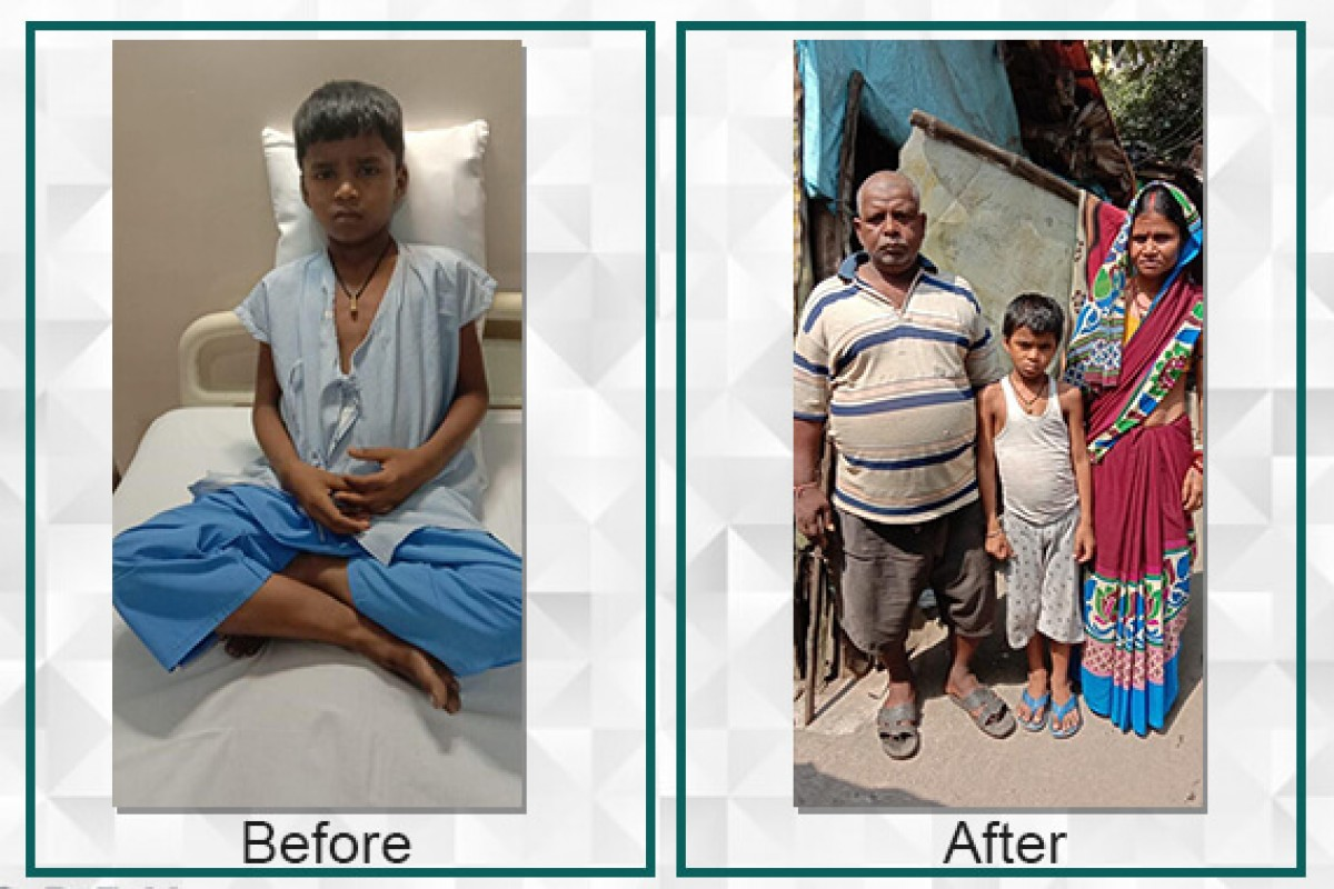 Kundan diagnosed with a heart defect was able to undergo immediate surgery with the raised fund
