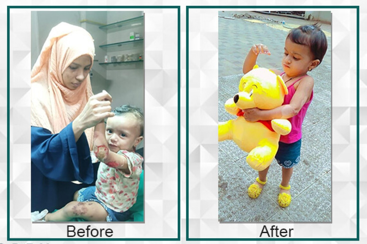 Naba has become the star after surgery and she is a more active child now