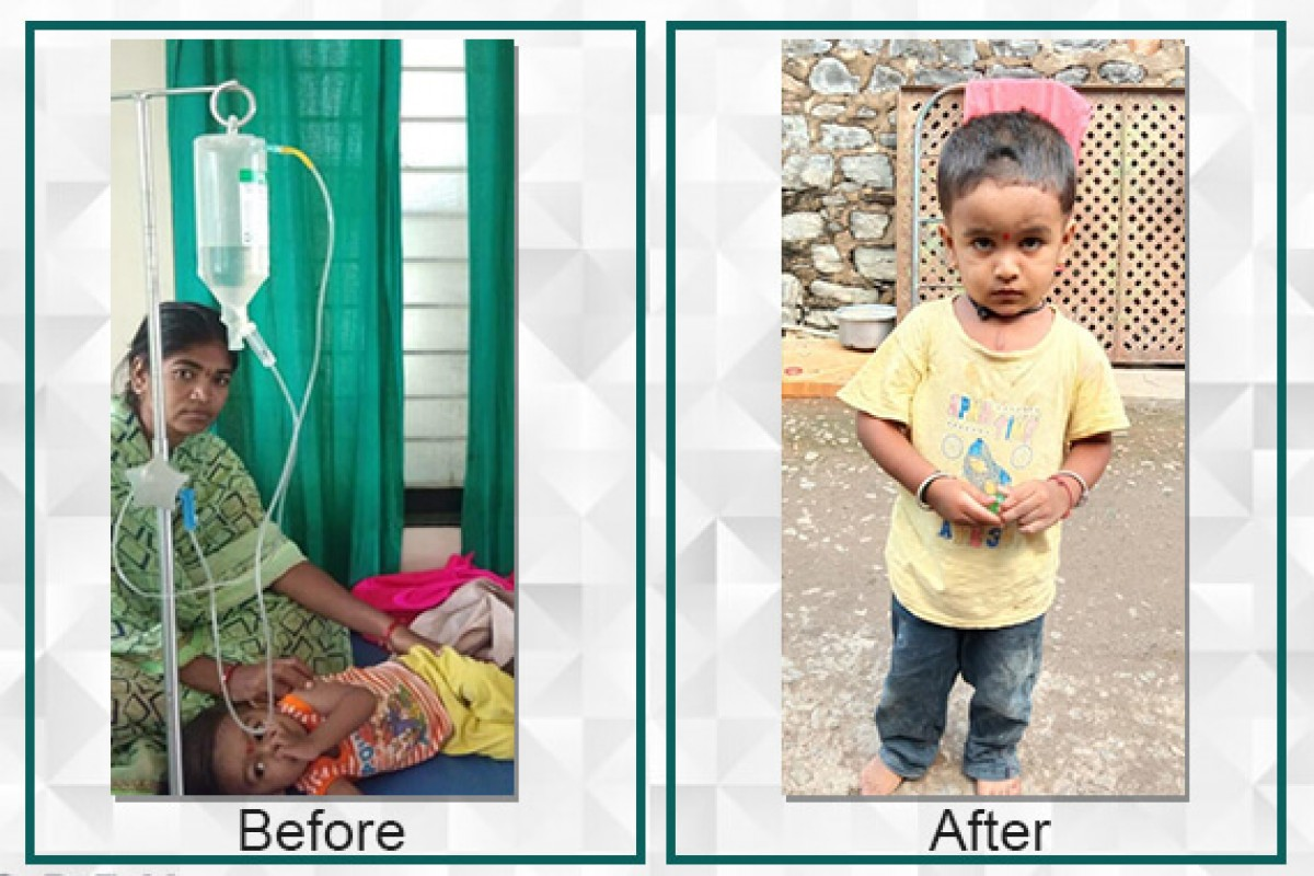 Filaantro supported Sanket's treatment by raising the required funds which in turned saved his life