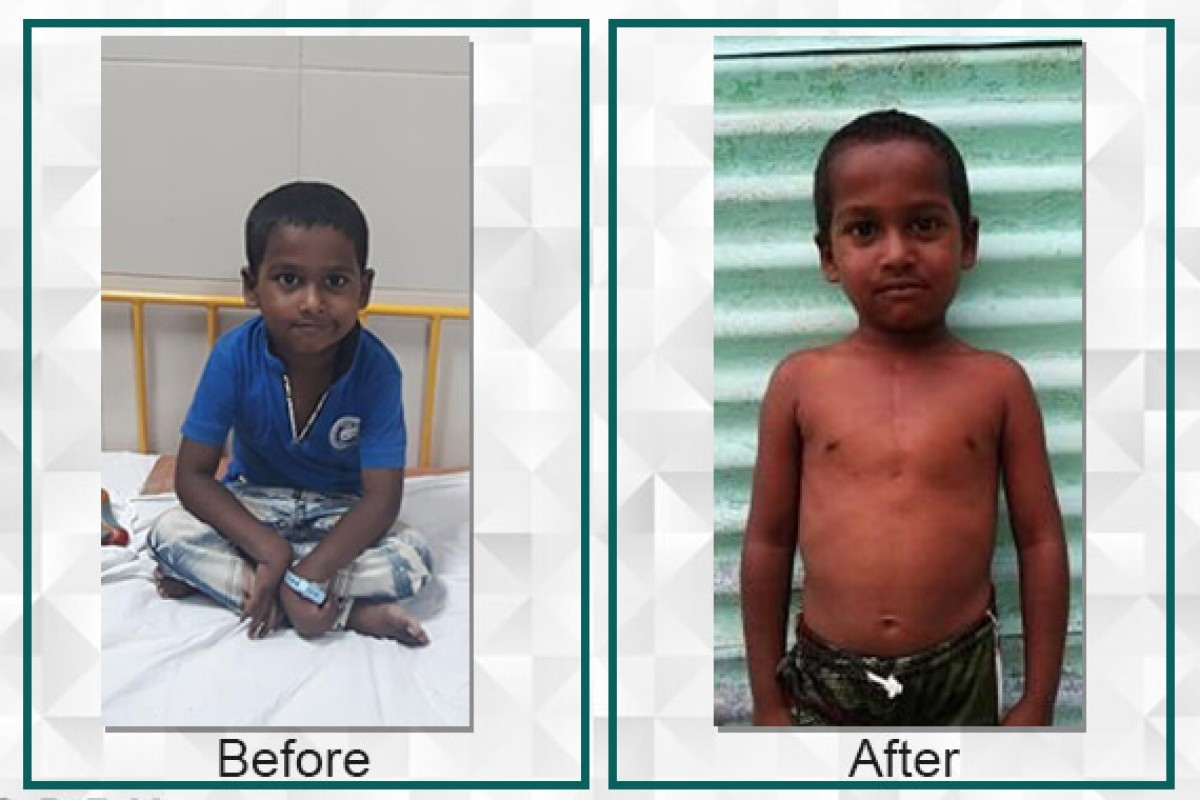 Sufiyan, born with heart disease was able to undergo surgery with the help of Filaantro