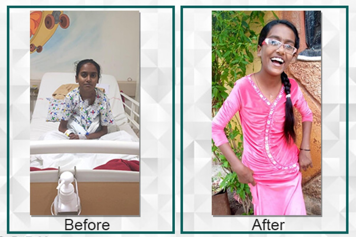 Suvarna raised Rs.4,25,000/- for her heart treatment with the help of Filaantro (Suman completed the treatment of her heart and now is well an fine)