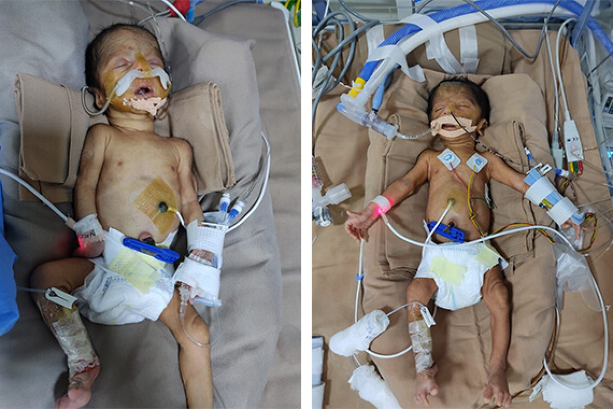Twins of Deevyashri are 8 day old premature babies. They need 4 weeks of NICU stay. | Please support their treatment.....